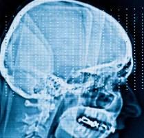 Thumbnail image for brainscan.jpg