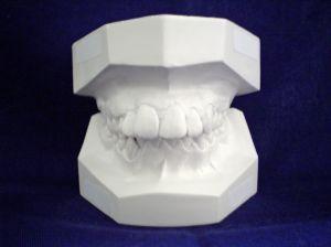 dentist-mold.jpg